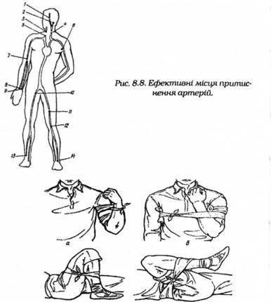 Згинання кінцівок у суглобах для зупинки кровотечі в зоні