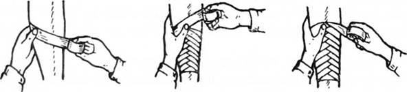 Спіральна пов'язка з перегином