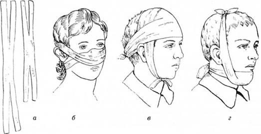 Пращевидні пов'язки на обличчя