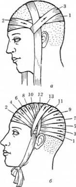 Пов'язка на го¬лову у вигляді чепчика (а, б)