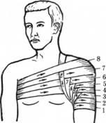 Колосовидна пов'язка на плечовий суглоб