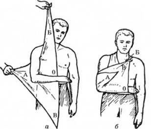 Підвішування руки на косинці (а, б)