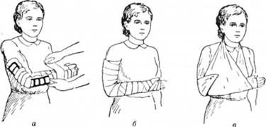 Іммобілізація передпліччя (а, б); підвішування на косинці (в)